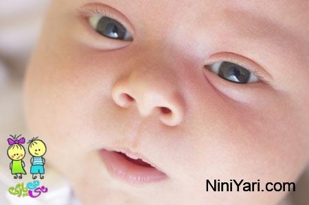 زردی نوزادان ، درمان زردی نوزاد